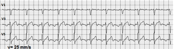 Interpretation of uncommon ECG findings in patients with