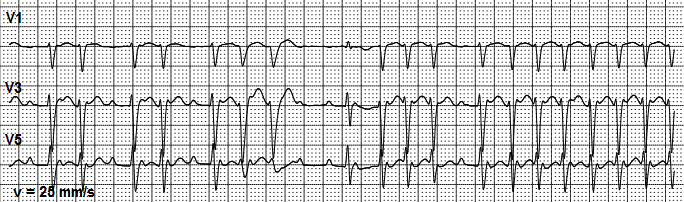 Interpretation of uncommon ECG findings in patients with