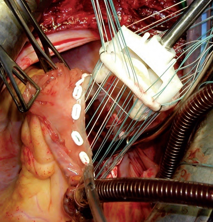 Choice Of Approaches For Surgical Correction Of Tricuspid